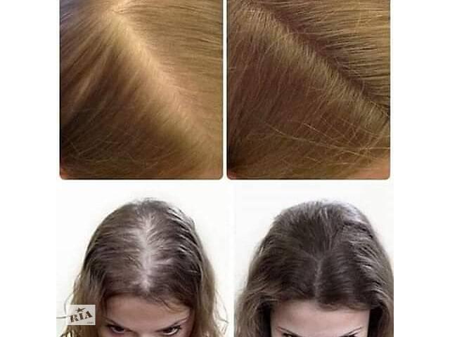 Комплекс для роста и укрепления волос