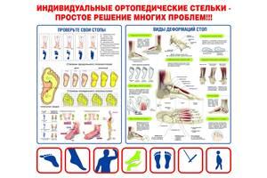 Плакат - ПРОВЕРЬ СВОИ СТОПЫ