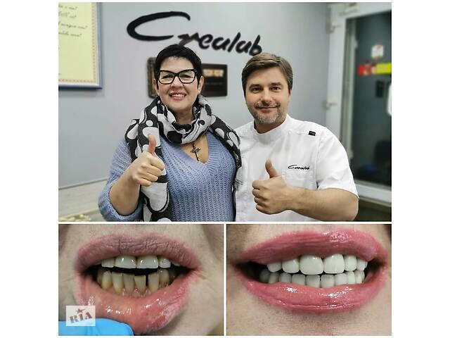 Коронка керамическая на оксиде циркония- объявление о продаже   в Украине